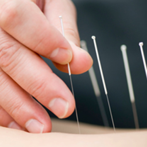 The tiny needles used in acupuncture may be able to help you exercise with less pain, move more quickly and recover more rapidly.