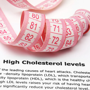 It's important to reduce cholesterol for better cardiovascular health
