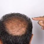 Man pointing to his bald spot