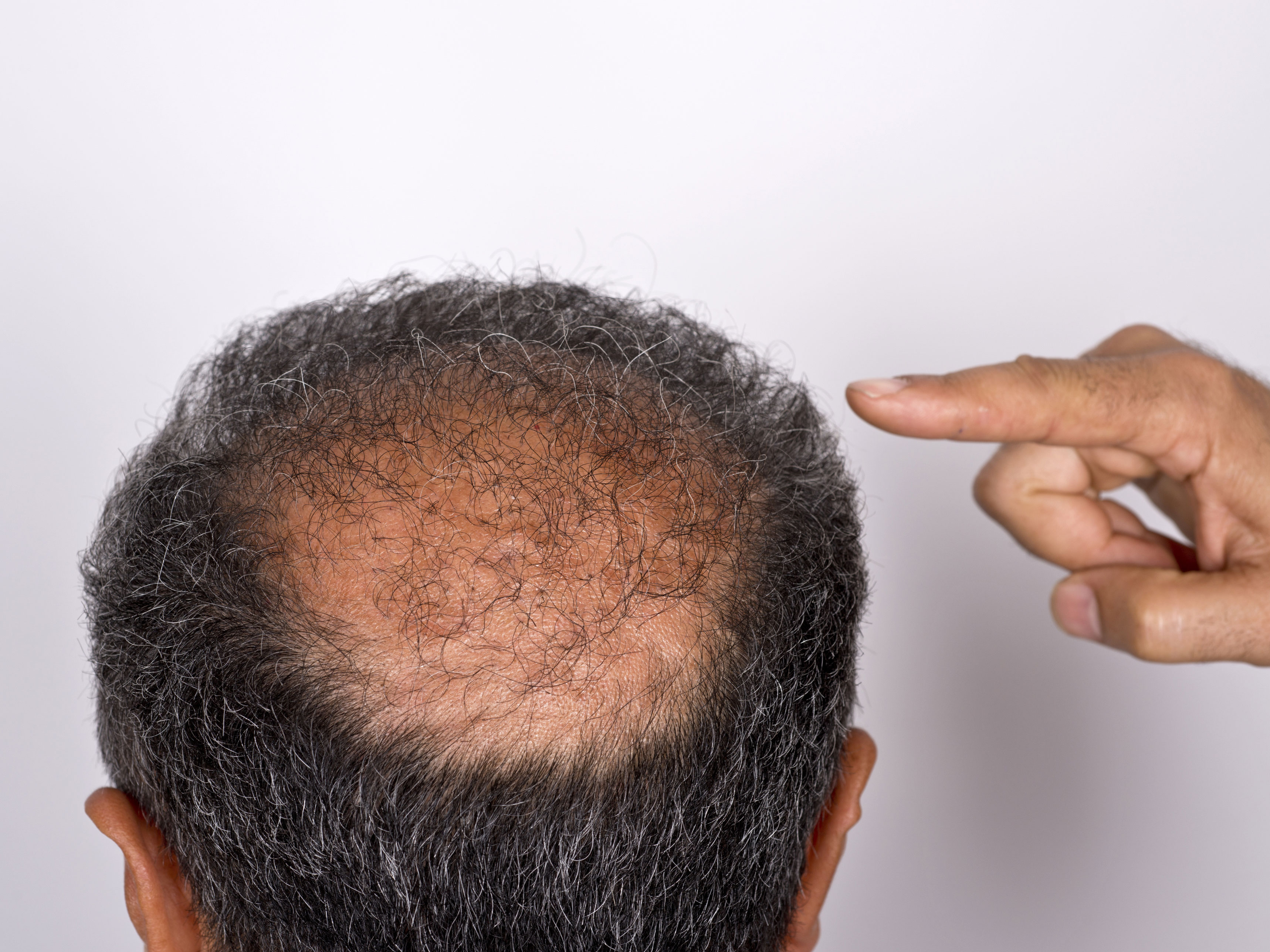 The Bald Spots That Are Linked To Cancer Easy Health