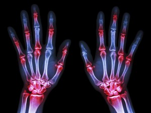 Arthritis at multiple joint of hands(Gout,Rheumatoid)