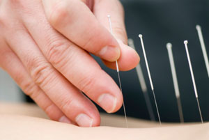 Acupuncture May Relieve Dry Mouth In Cancer Patients