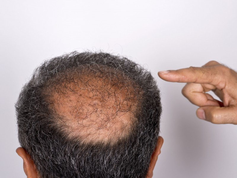 The bald spots that are linked to cancer - Easy Health ...