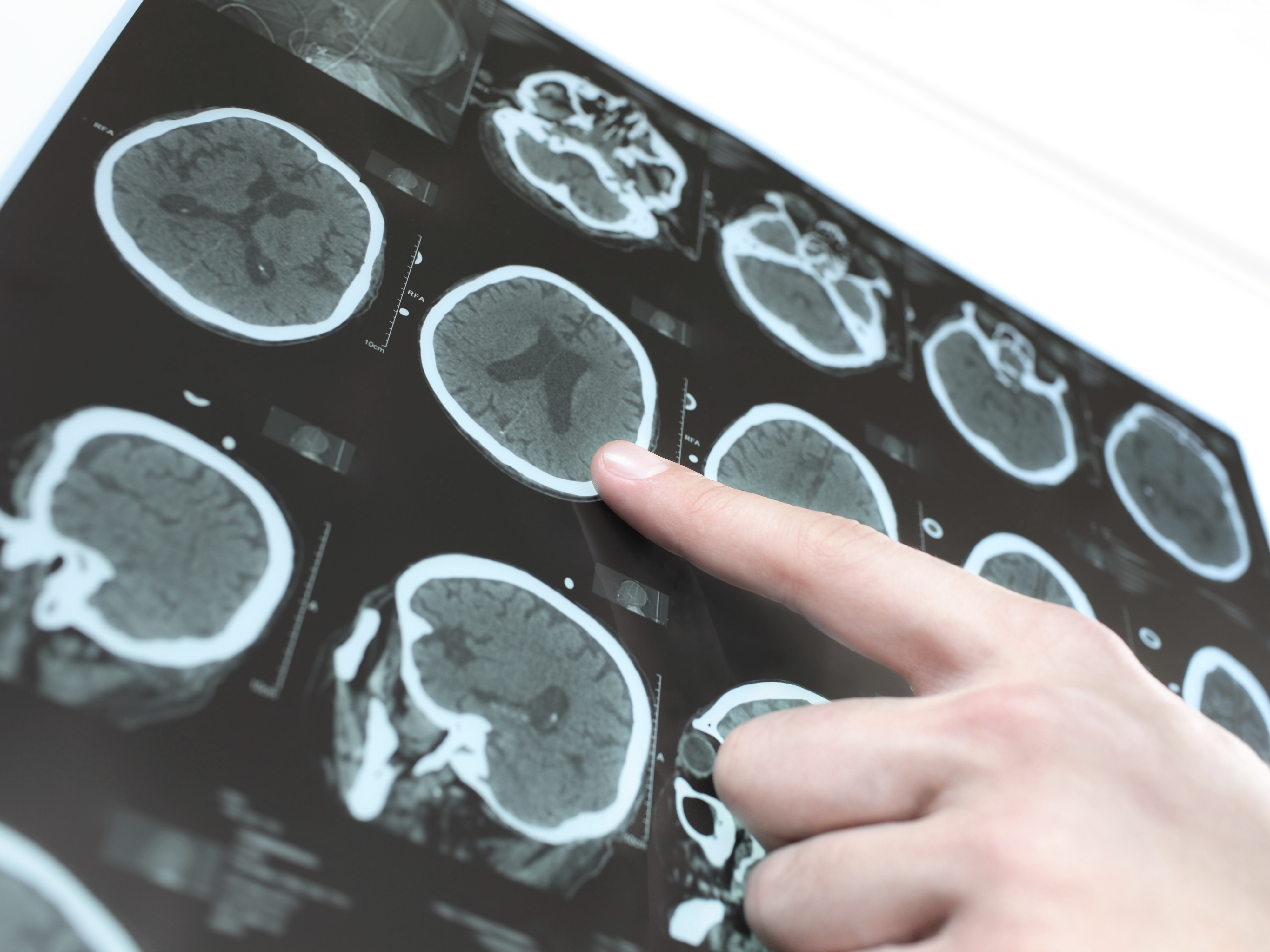 Protect your brain from Parkinson's