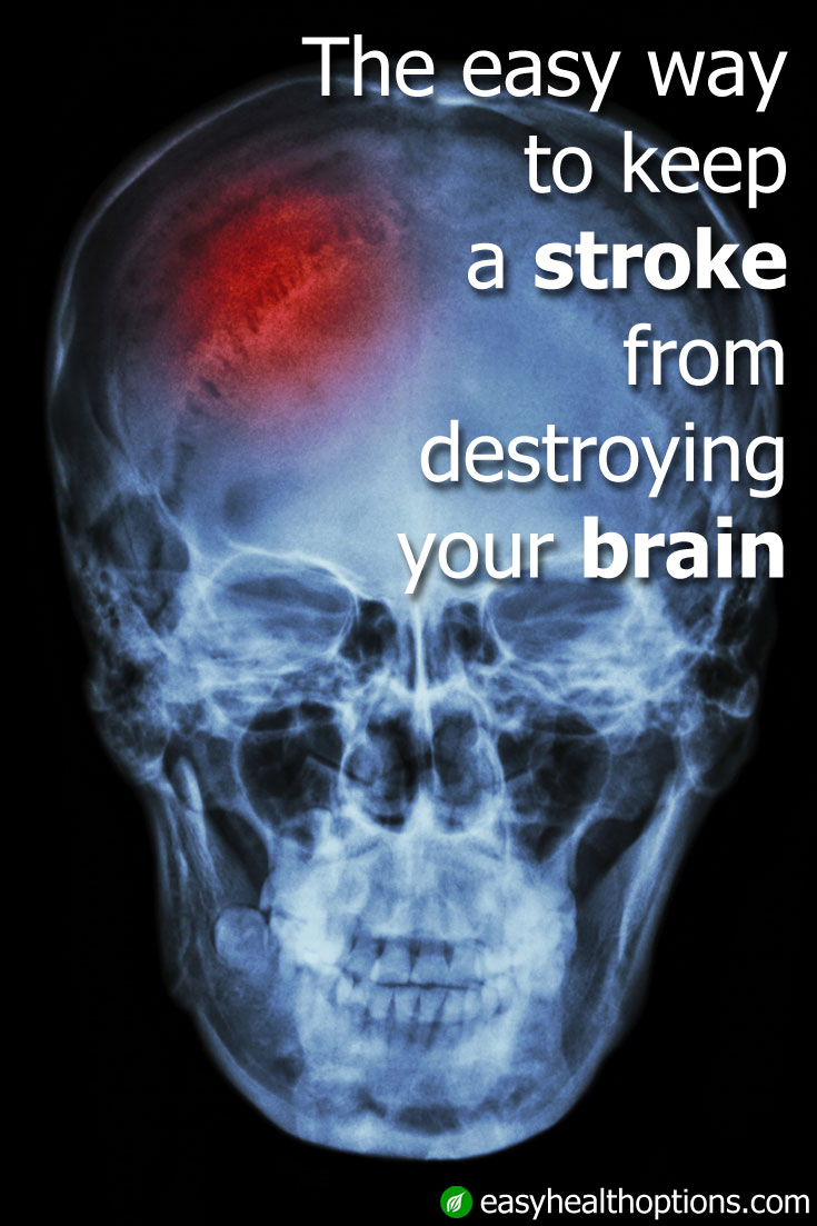 The Easy Way To Keep A Stroke From Destroying Your Brain