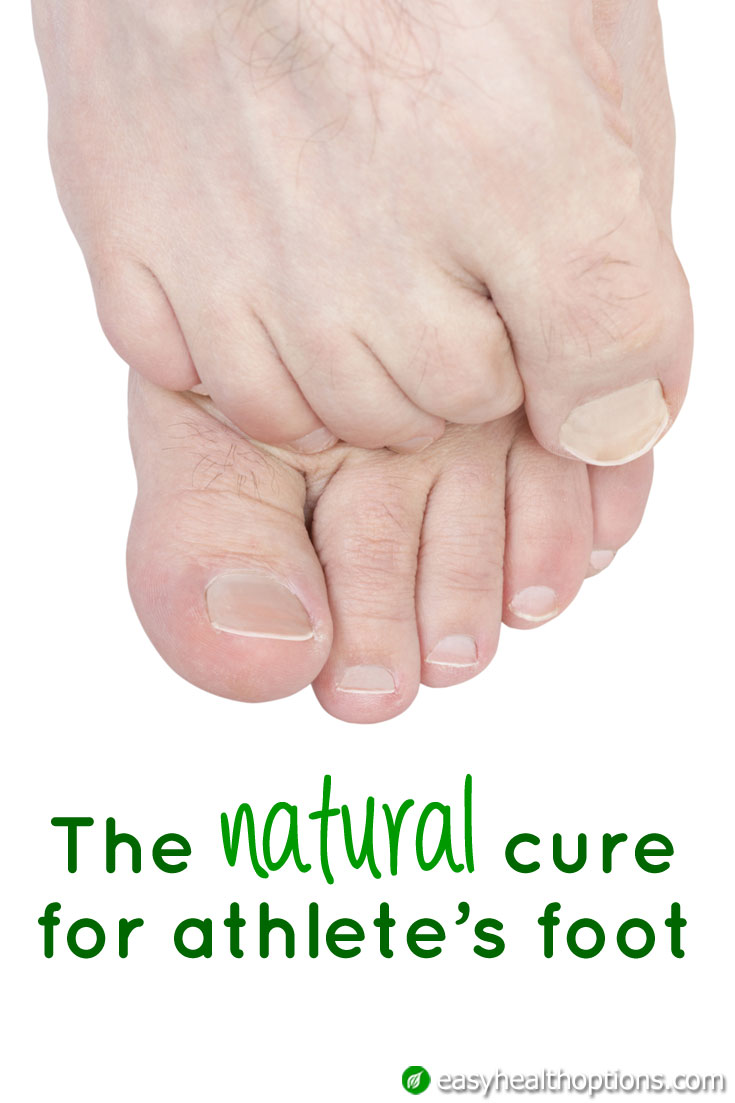 The Natural Cure For Athlete S Foot Easy Health Options 174