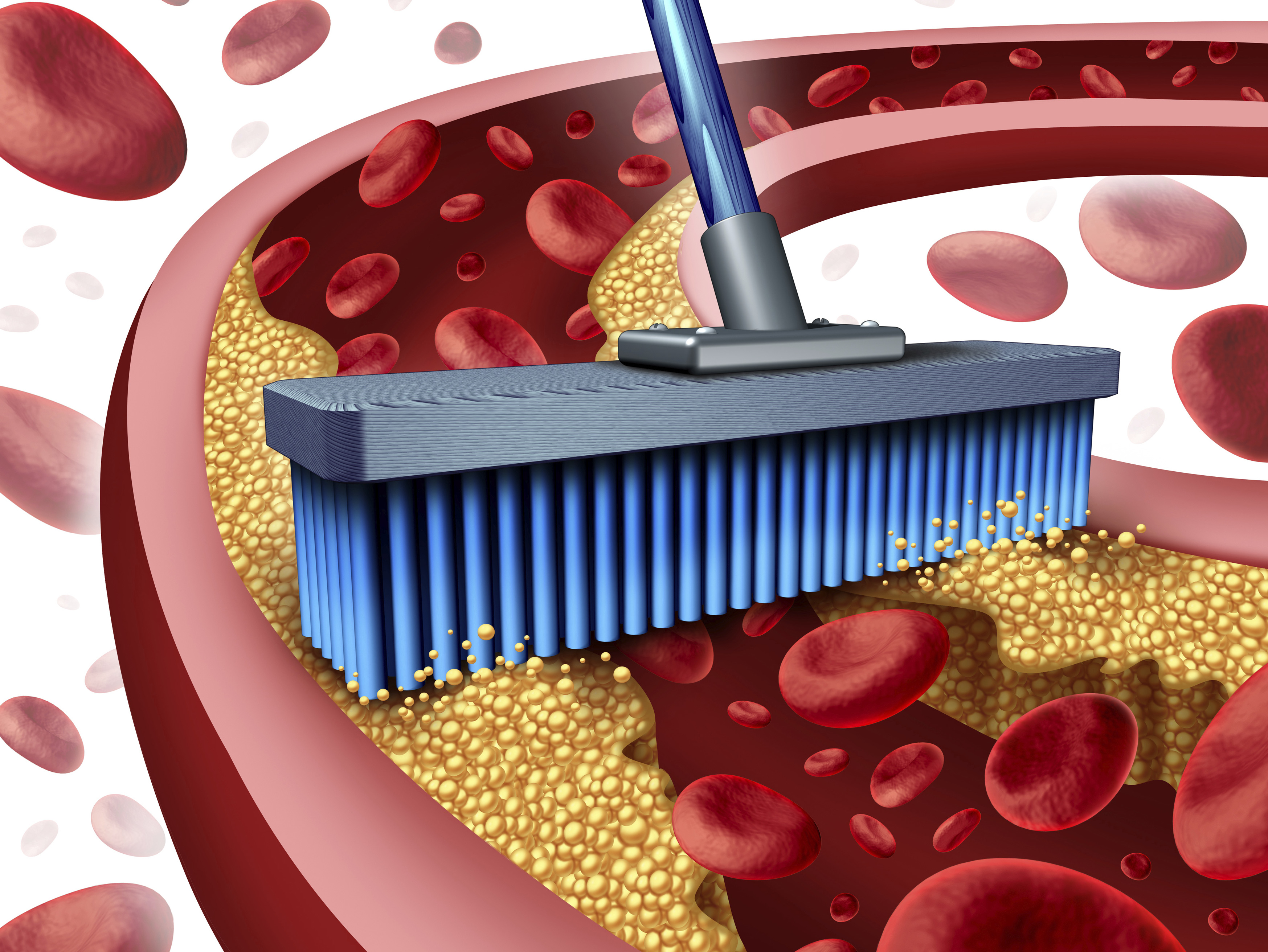 Can You Reverse Plaque Build Up In Your Arteries