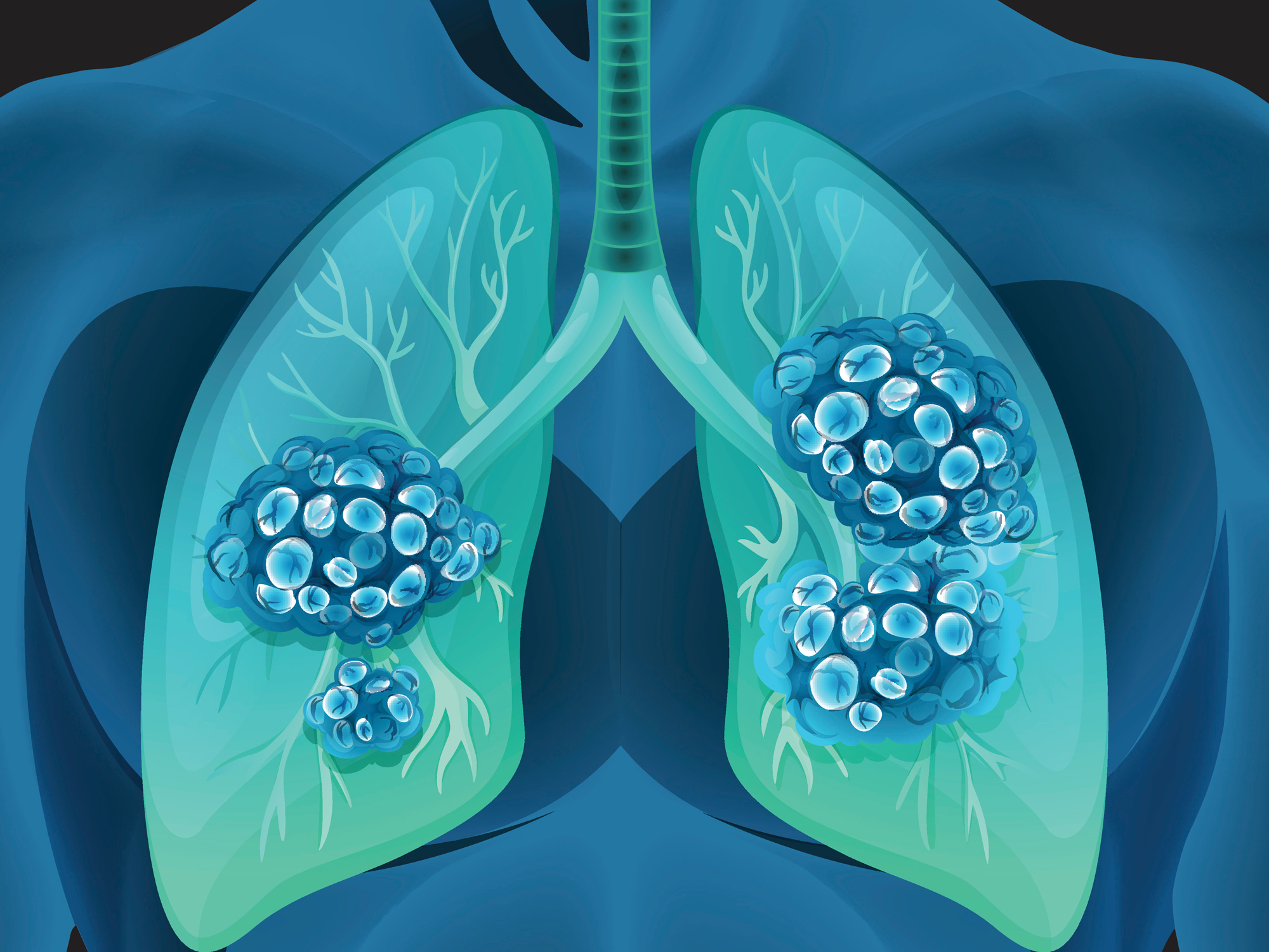 Can this food lead to lung cancer?