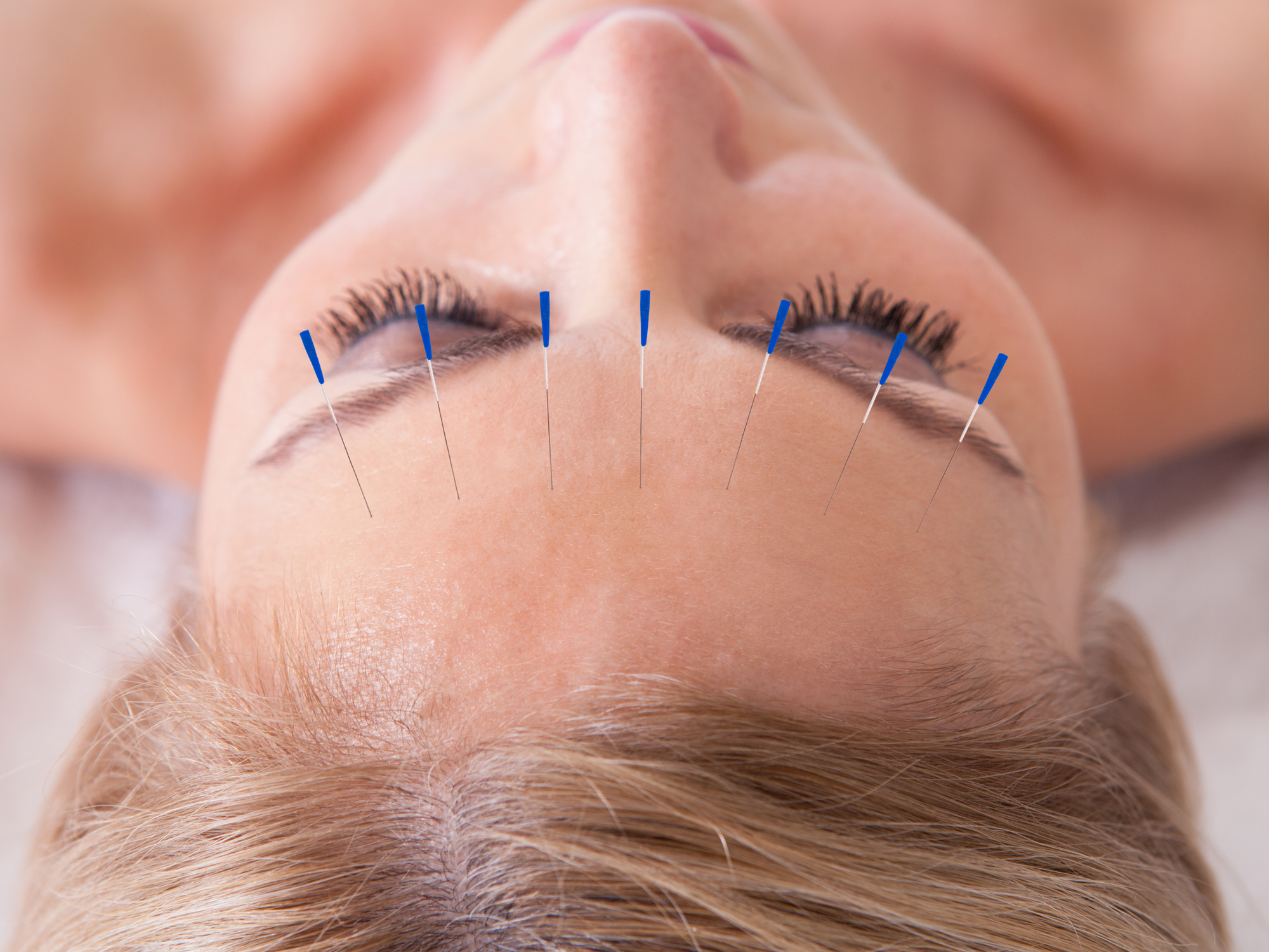 Where can a career in acupuncture take you? | Endeavour