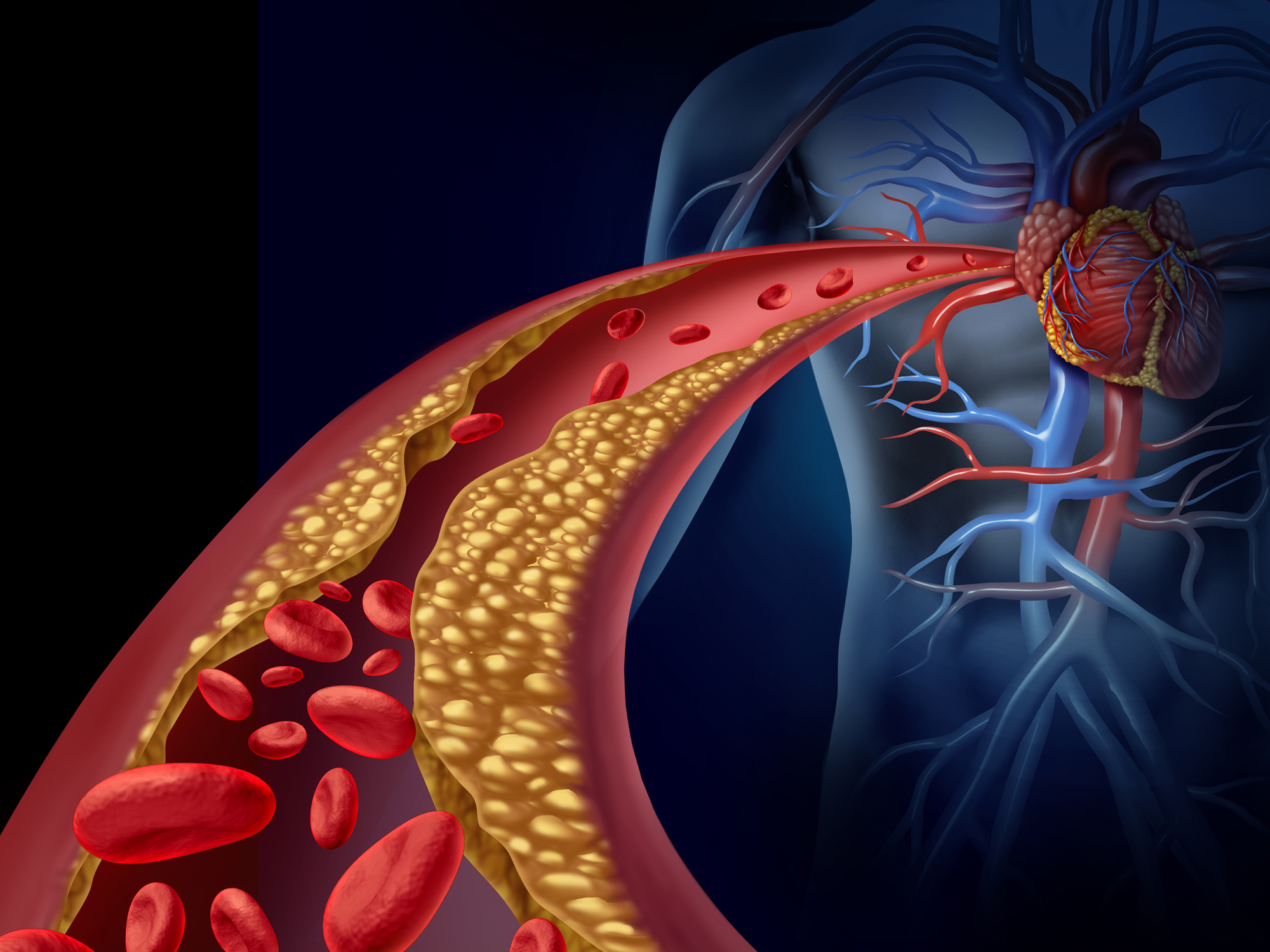 Cholesterol and heart disease: Prepare to be mind-blown