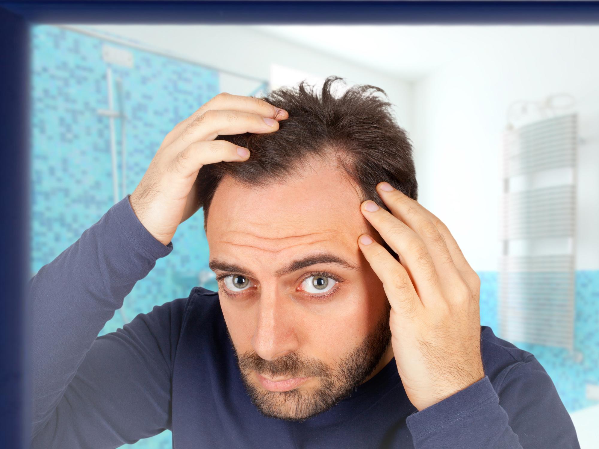 What your hair (or lack of it) reveals about prostate cancer