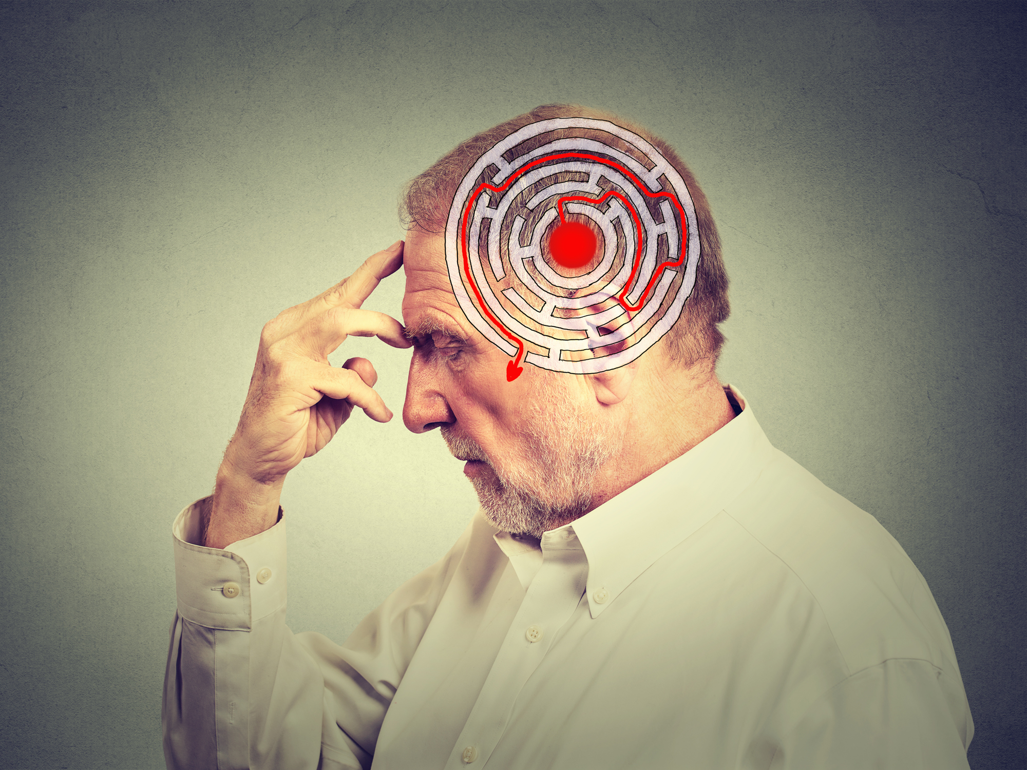 Are unnecessary medical tests giving you Alzheimer's?