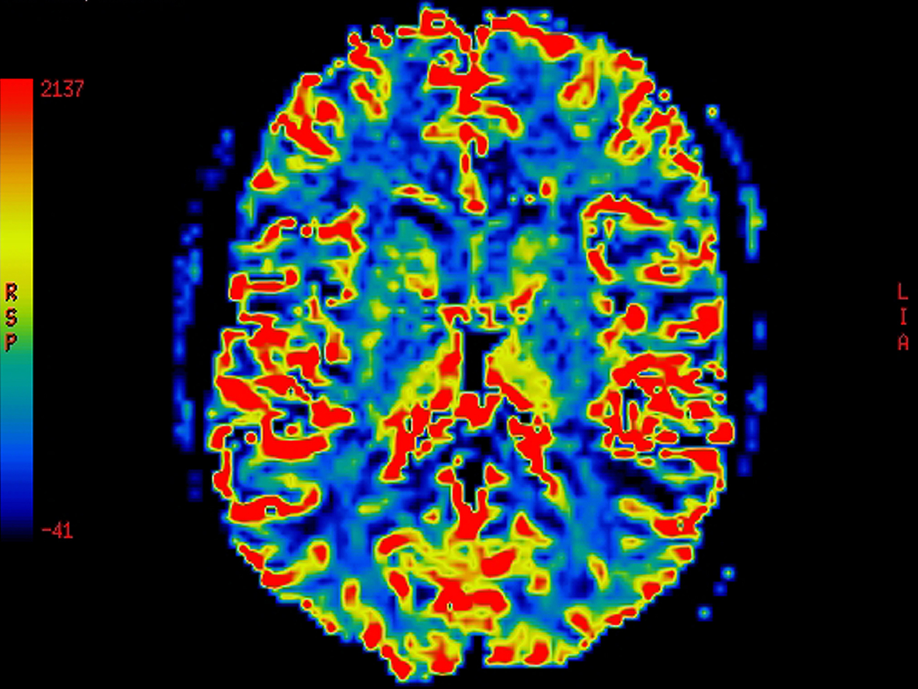 Is There A Test For Alzheimers >> The at-home Alzheimer's test more effective than brain ...