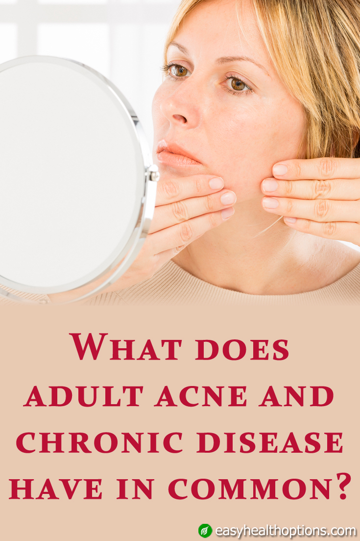 acne adult truth