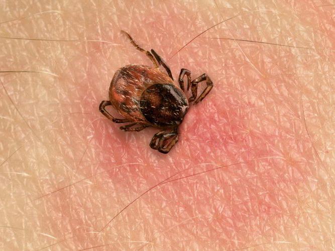 Lyme disease is America's secret silent plague
