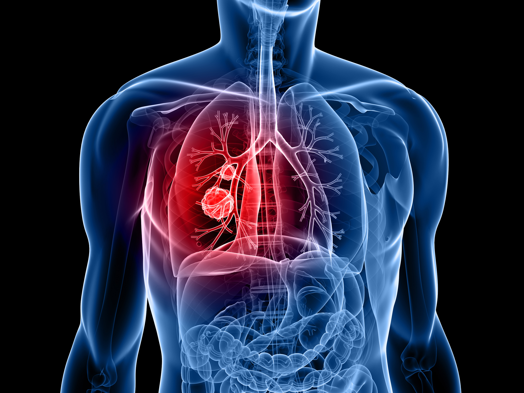 This lung cancer-fighting food will have you seeing red