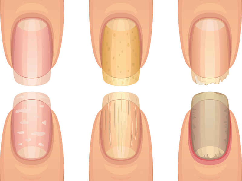9 Fingernail Signs You Might Be Sick