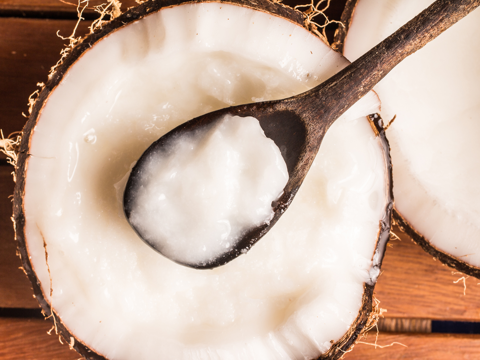 Why they are wrong about coconut oil
