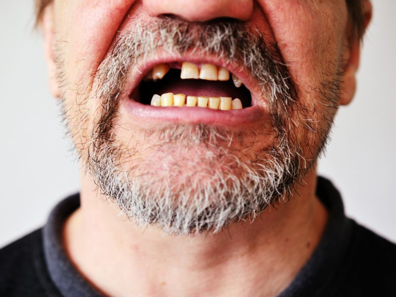 Why This Disease Sign Makes Your Teeth Fall Out Easy Health Options