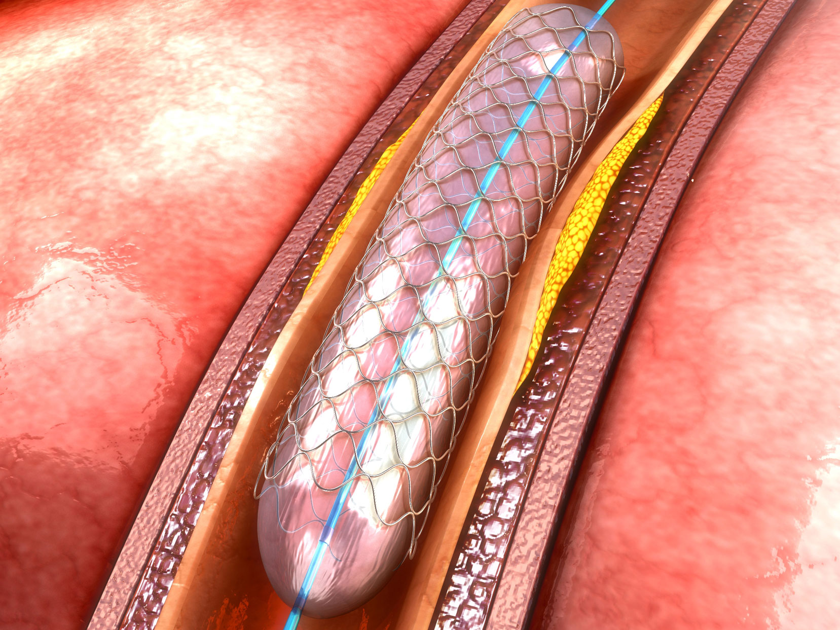Stents don't work
