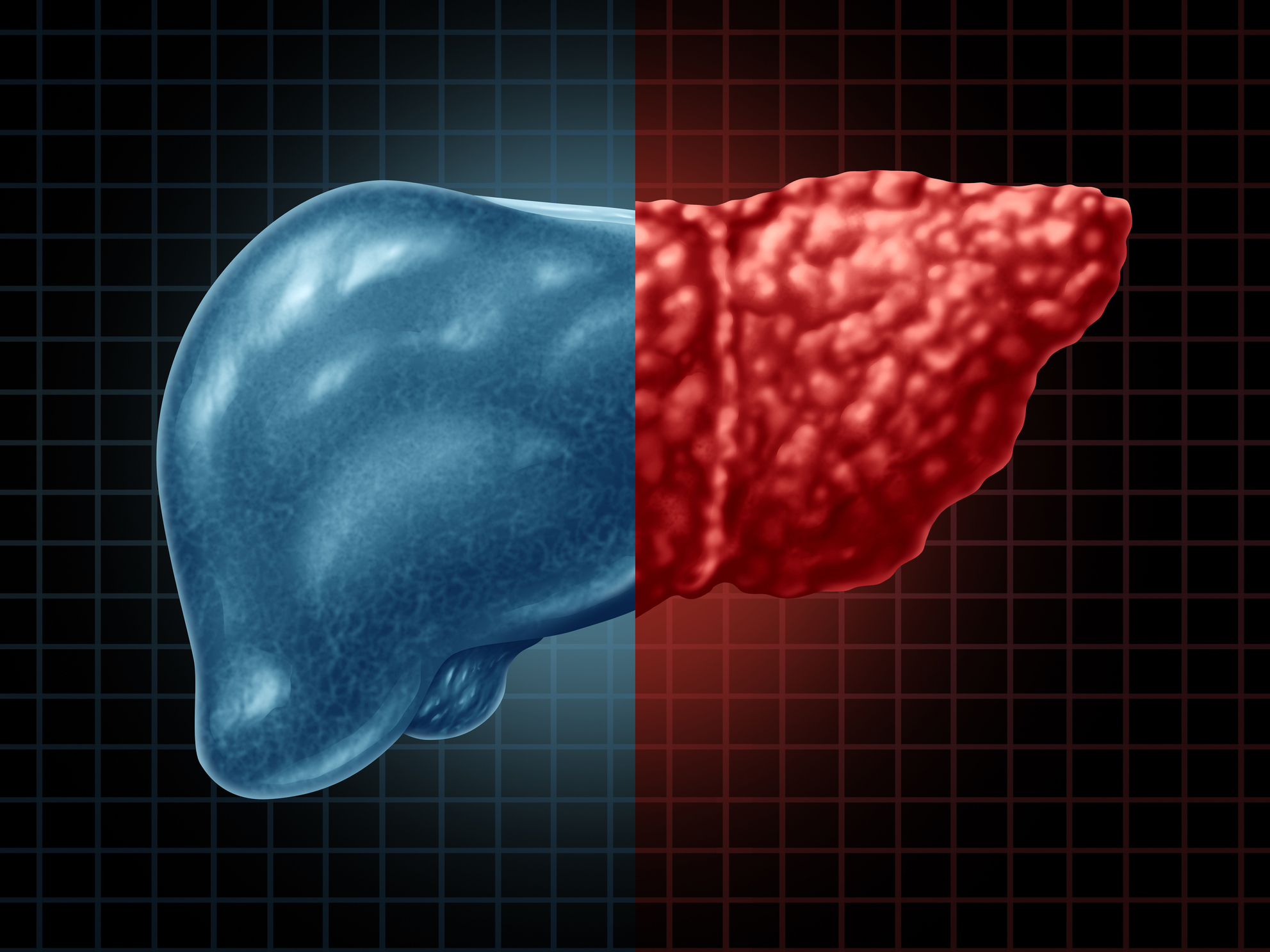 The dangers of a fatty liver and how to protect yourself