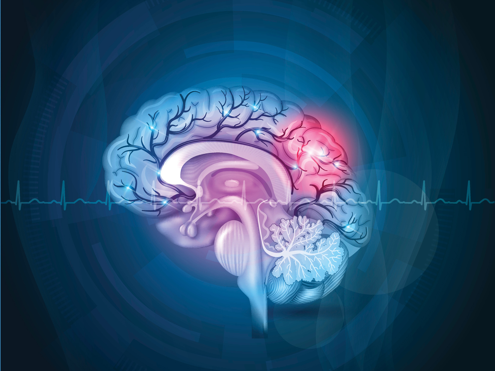 What you should know about vascular dementia