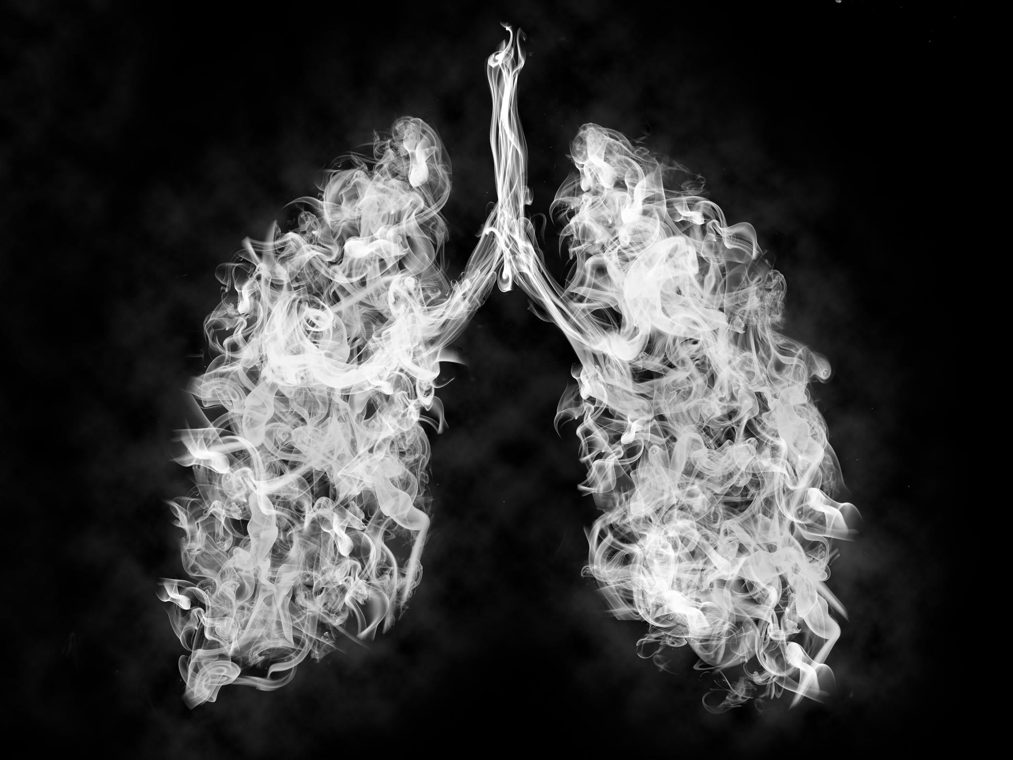 Why smokers' lungs are extra receptive to coronavirus
