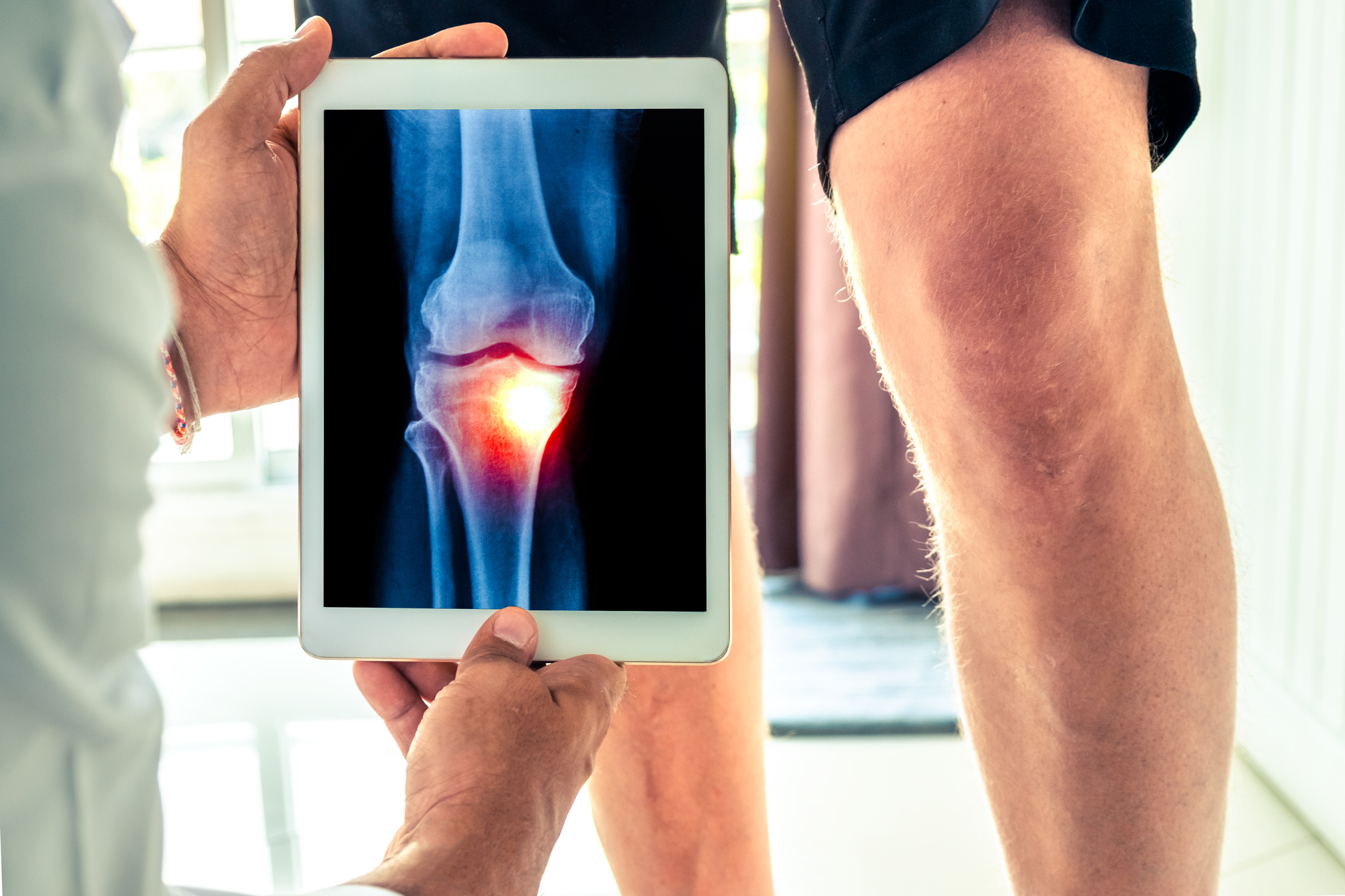 How effective is garlic for osteoarthritis knee pain?