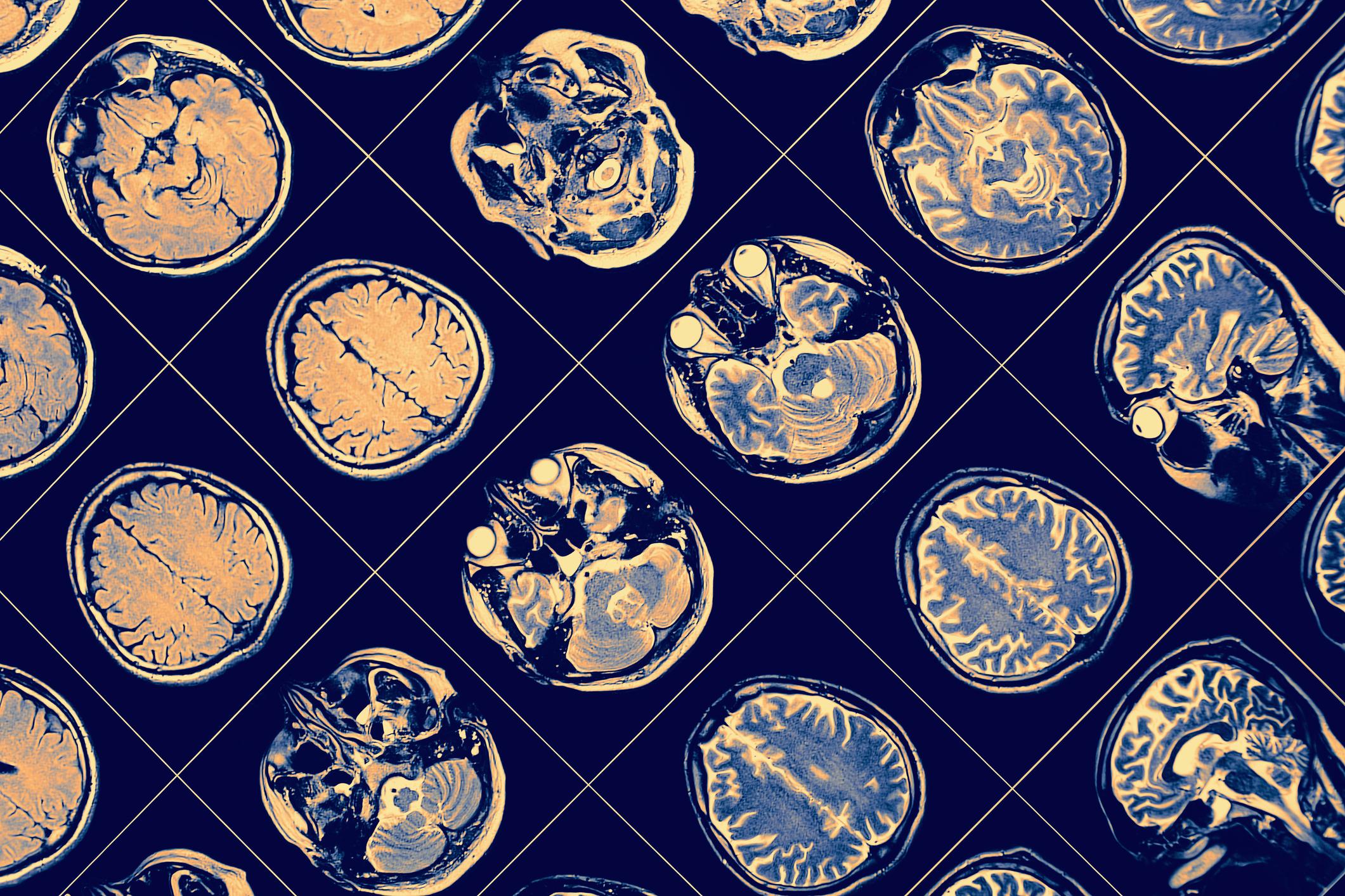 Hyperbaric oxygen therapy reversed hallmarks of Alzheimer's