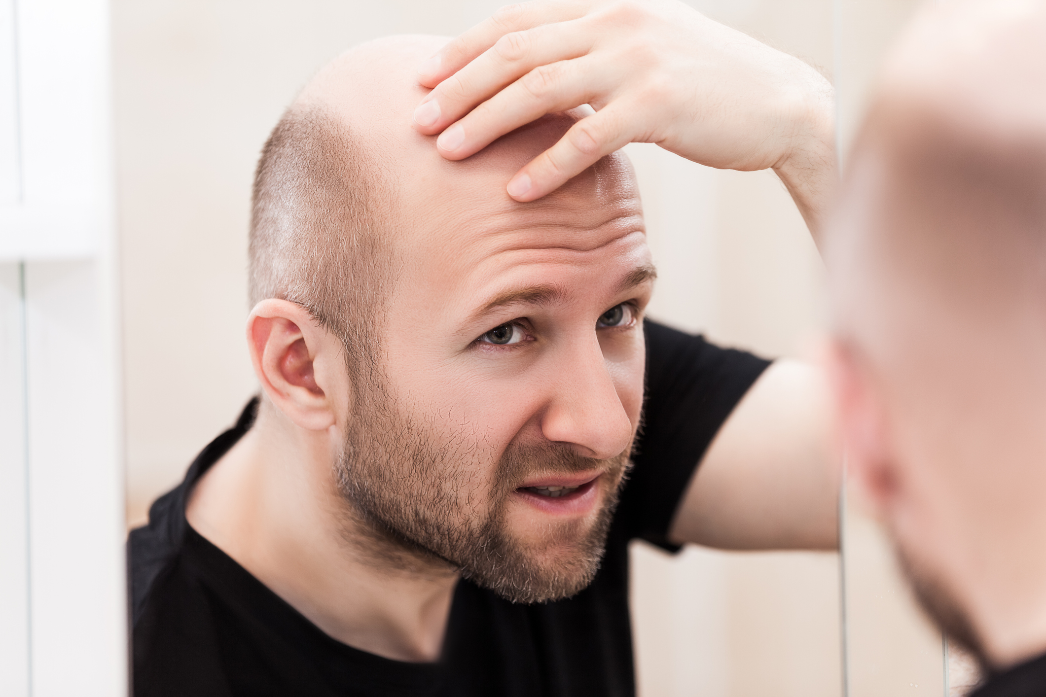 The diet that accelerates hair loss
